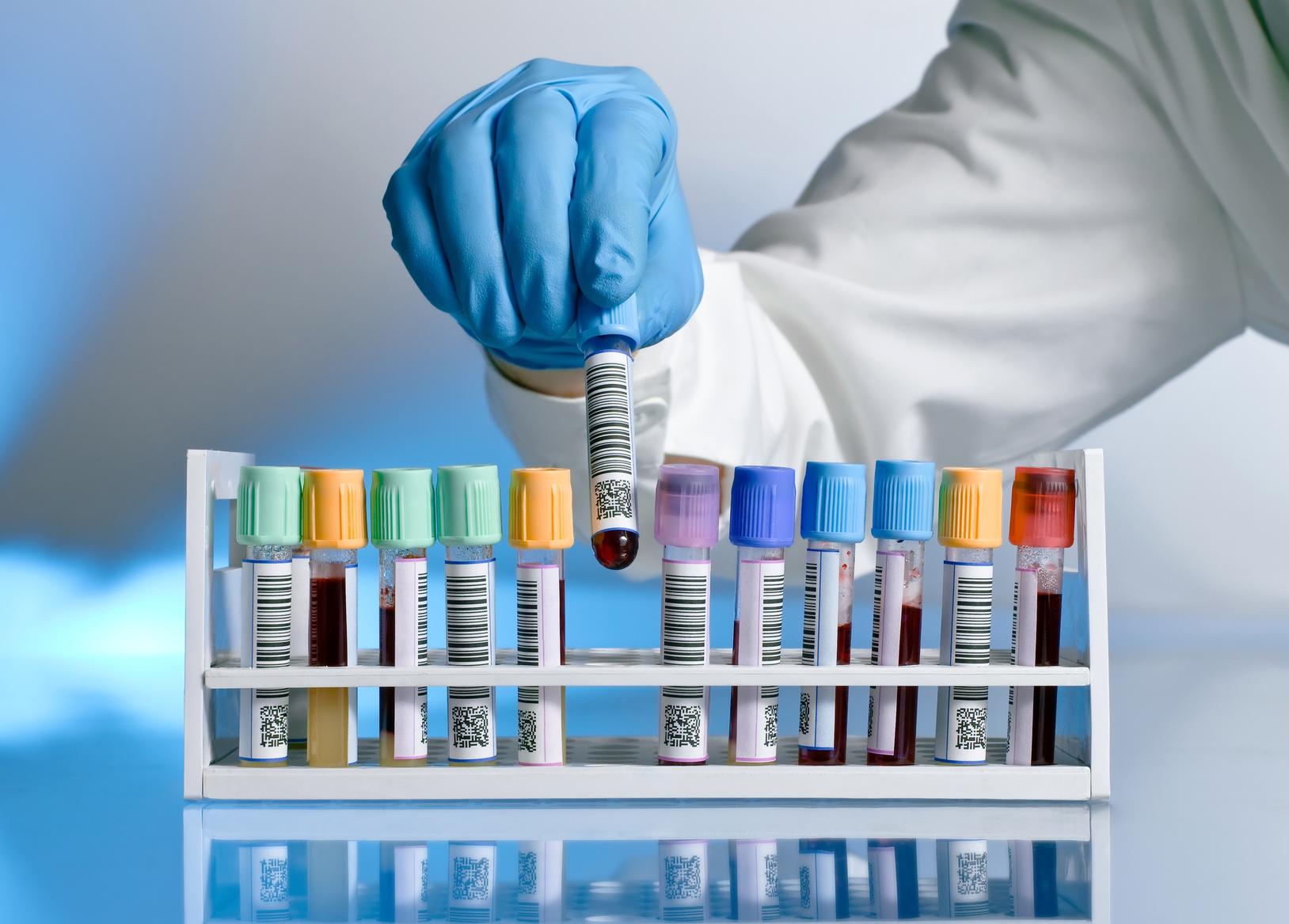 verschlossene und mit einem Barcode-Aufkleber versehene Plastikgefäße mit Blutproben in einem Ständer, ein Mensch im weißen Kittel und mit Gummihandschuhen nimmt ein Gefäß aus dem Ständer