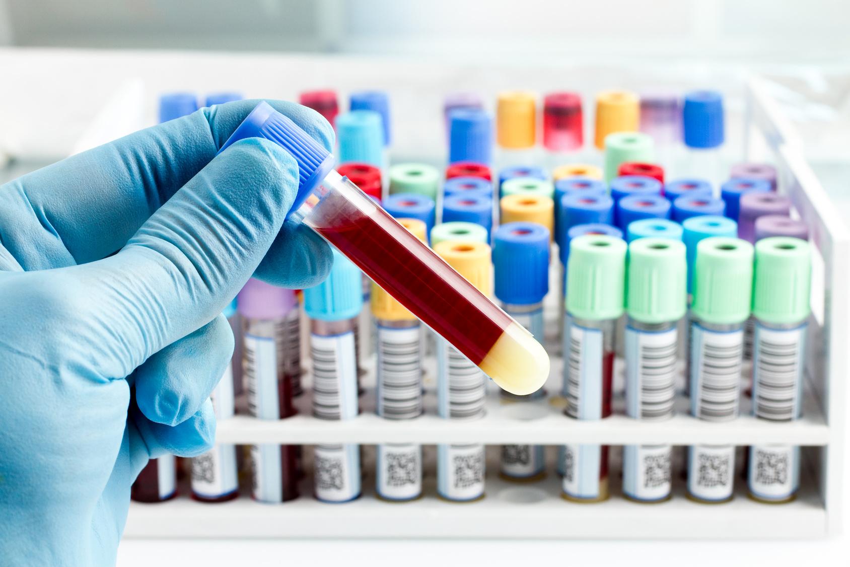 Blutprobe im Reagenzglas