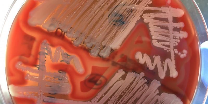 Foto: Methicillin resistente Staphylococcus aureus aus Schweineabstrichen isoliert auf einer Blut-Agar-Platte