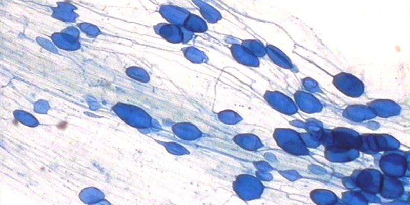Lichtmikroskopbild einer Feinwurzel, die eine Symbiose mit einem Pilz eingegangen ist. Der Pilz ist als blaue Knubbel in der Fadenförmigen Struktur zu sehen