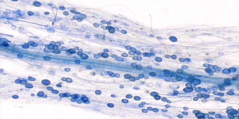 Hier sieht man die Symbiose zwischen Pilzen und Pflanzen: Mykorrhiza. In einer Wurzel sind mal blau angefärbte Punkte