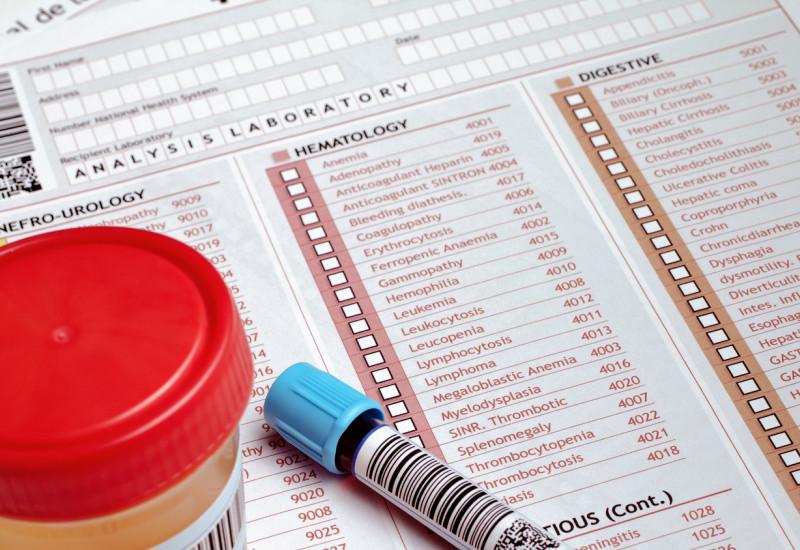 Urin- und Blutprobe in verschlossenen, beschrifteten Gefäßen mit Ankreuz-Formular für die Laboruntersuchung