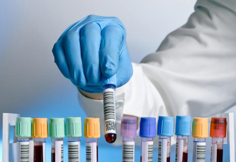 Eine behandschuhte Hand stellt ein Reagenzglas mit einer Blutprobe in eine Reagenzglashalterung, in der bereits weitere Blutproben stehen.